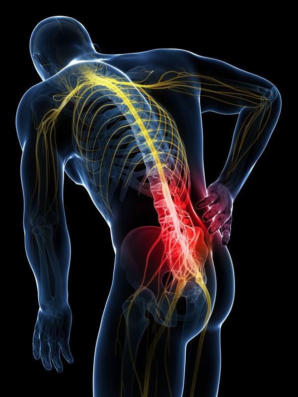 腰痛イメージ画像